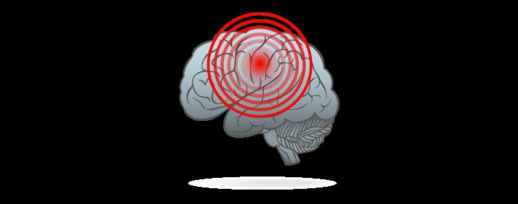 Produkter til overpris får hjernen til at signalere smerte